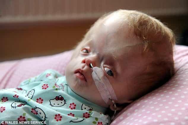 hydrocephalus disease in babies