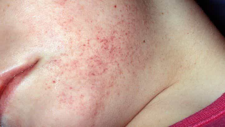 Fungal Infection Skin Red Rashes diseases blood cancer
