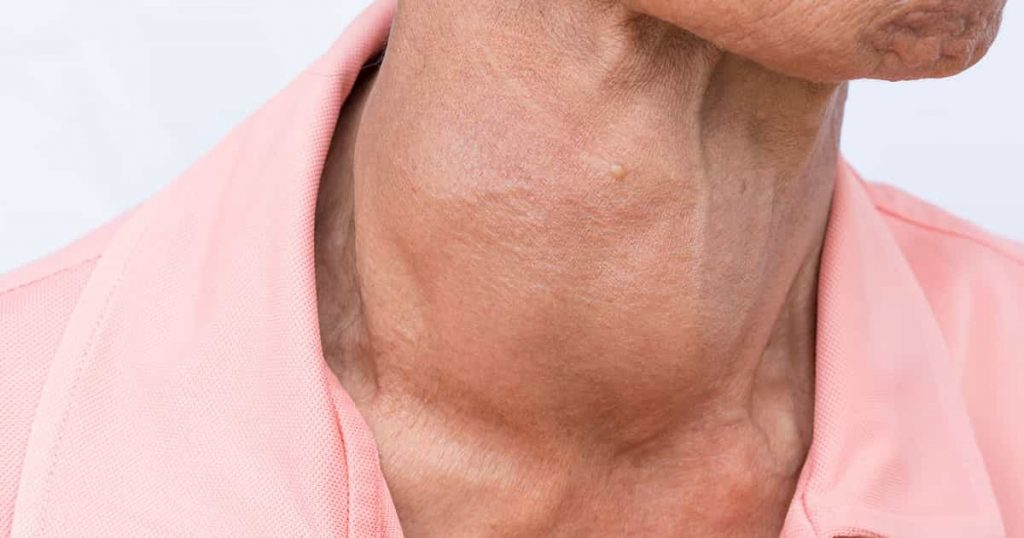 Thyroid in Mens Pain in Muscles Know About it