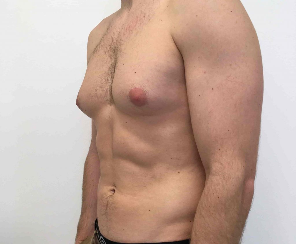 What causes gynecomastia?